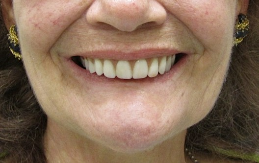 Dentures before at Swiss Denture & Dental Implant Center in Portland OR